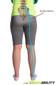Shooting pain from back, into the buttock and leg