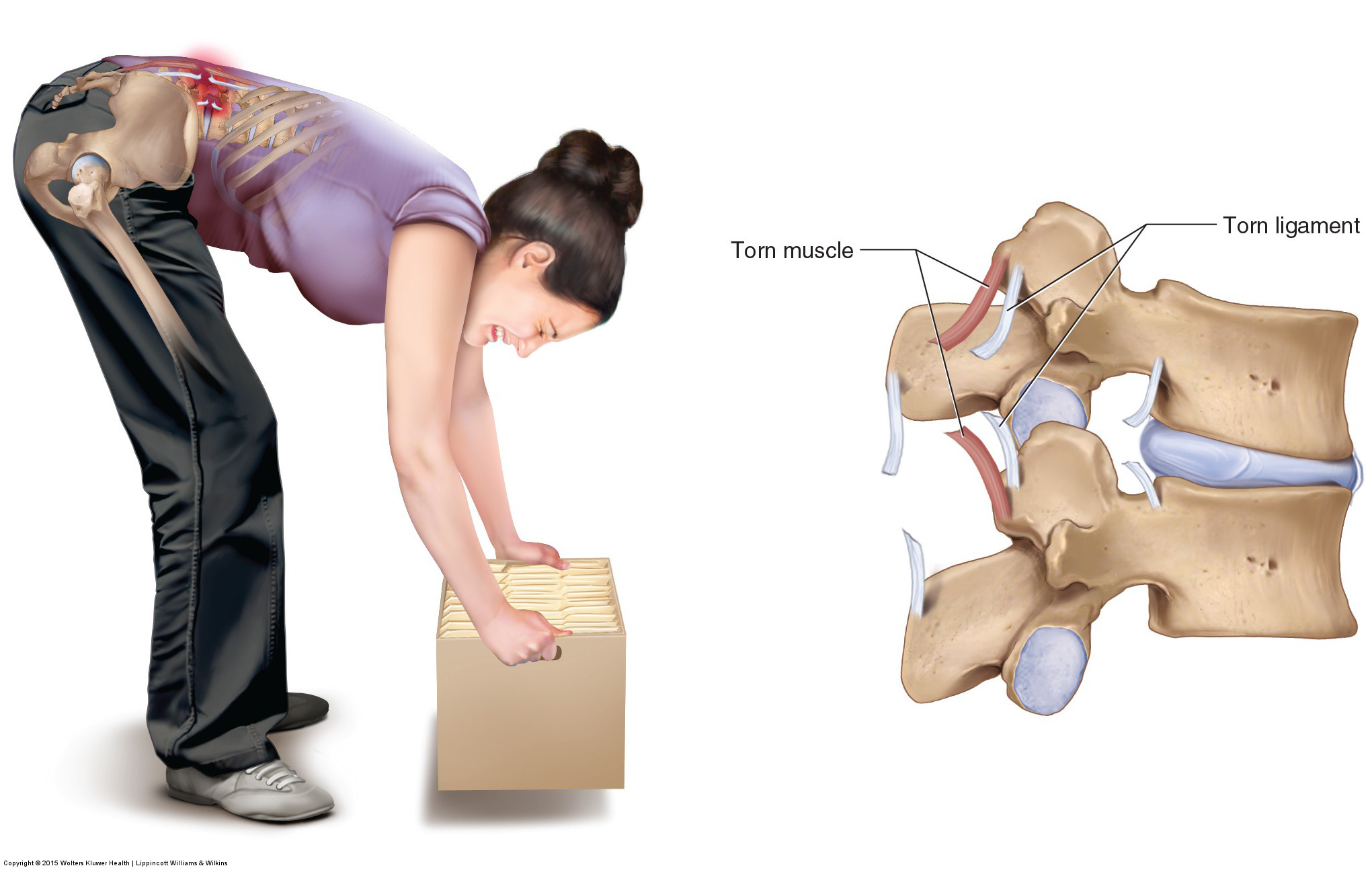 Do i have joint sprain or strain?